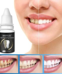 10 ml Teeth Whitening Cream Remove Black Tooth Yellow Tooth Tooth Tea Stains Teeth Care